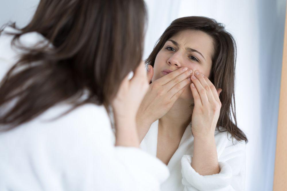 Je možné bojovať s akné v zrelom veku?
